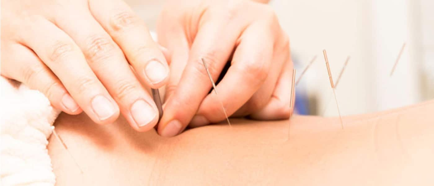 Acupuncture Treatment Burleigh