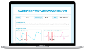 max pulse 300x176 - Wellness Technologies
